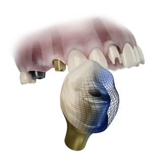 dentsply implants hasselt